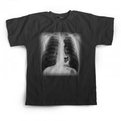 X-Ray Black Tee